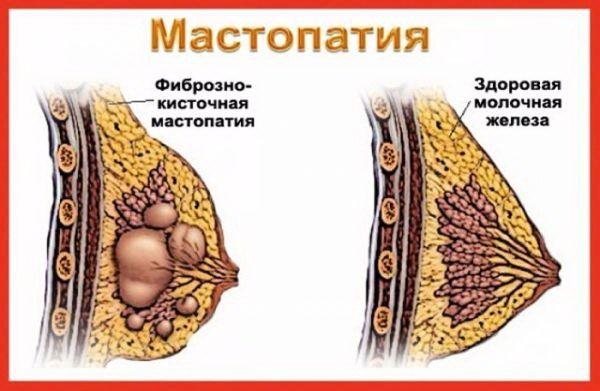 две груд