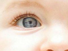Глаз у ребенка