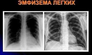 Эмфизема легких: лечение в домашних условиях и прогноз жизни