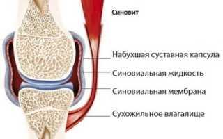 Синовит коленного сустава и его лечение народными средствами
