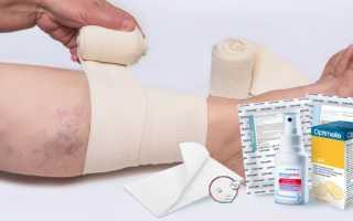 Трофические язвы на ногах и лечение народными средствами