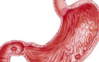 Язва двенадцатиперстной кишки и ее лечение в домашних условиях