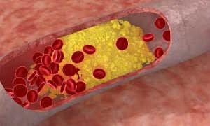 Как лечить атеросклероз нижних конечностей народными средствами