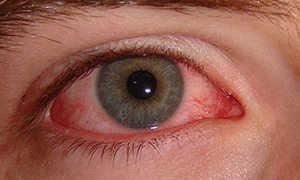 Как лечить воспаление глаза в домашних условиях