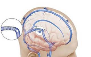 Народные средства для лечения внутричерепного давления