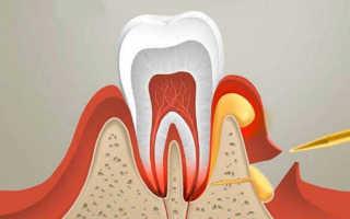 Абсцесс зуба и его лечение в домашних условиях