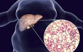 Ожирение печени и его лечение народными средствами