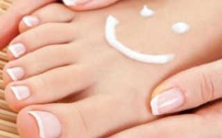 Лечение грибка кожи тела народными средствами