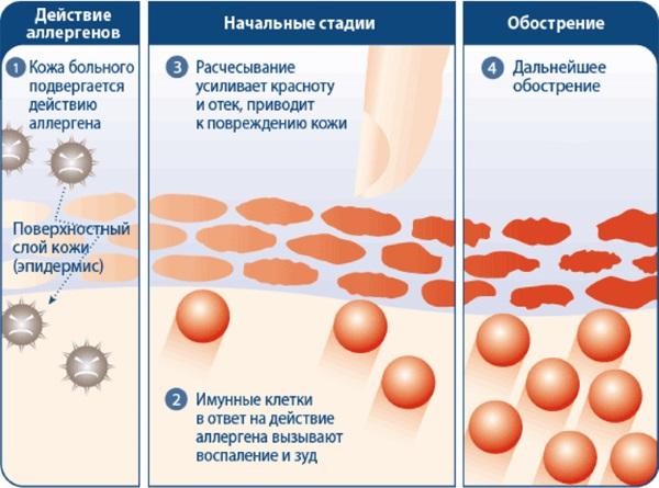 dermatit-lechenie-5.jpg