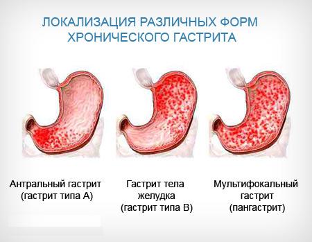 vidy-hronicheskogo-gastrita.png